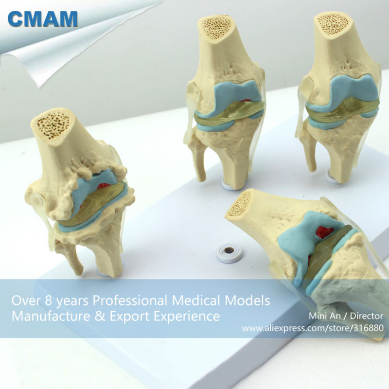 CMAM-JOINT12 Medical Anatomy Model 4-Stage Osteoarthritis Knee Joint Models canine osteoarthritis 4 stage knee canine dog 4 stage knee arthritis anatomy anatomical model skeleton esqueleto anatomia