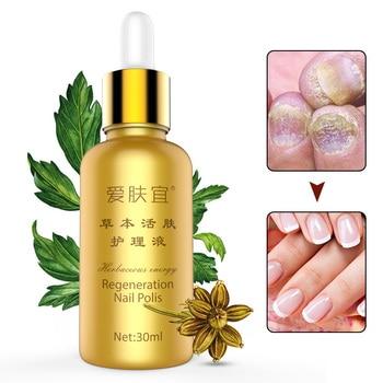 Alta Calidad 30 ml uñas hongos tratamiento líquido para uñas Anti hongo infección de cuidado de uñas