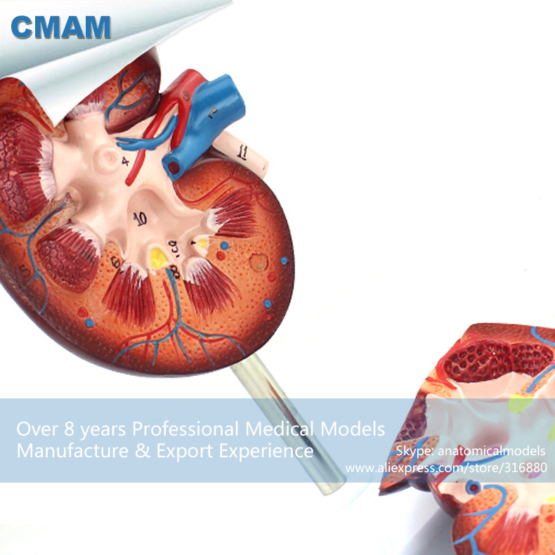 12434 CMAM KIDNEY05 Normale Nier Anatomie Model 2 Deel, 1.5 time ...