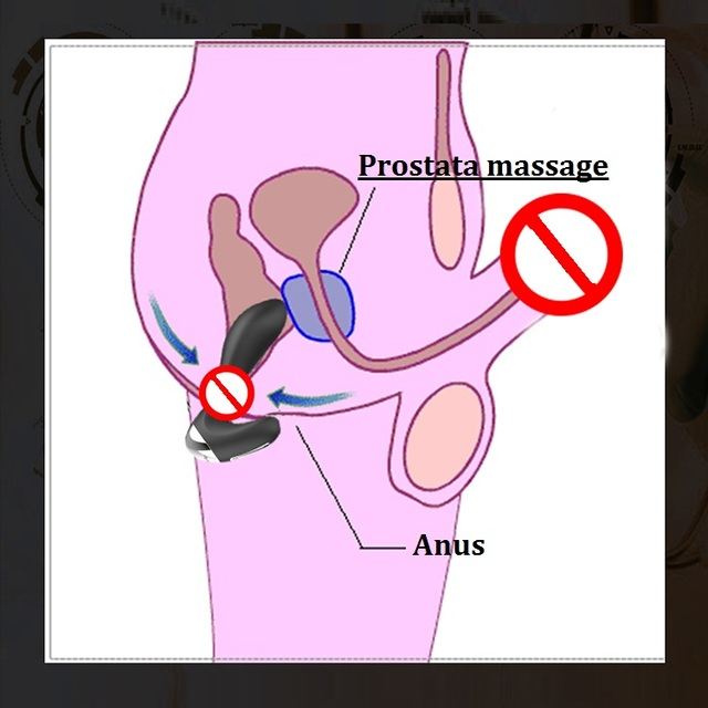 Anal Plug Vibrator Anal Sex Toys for Men