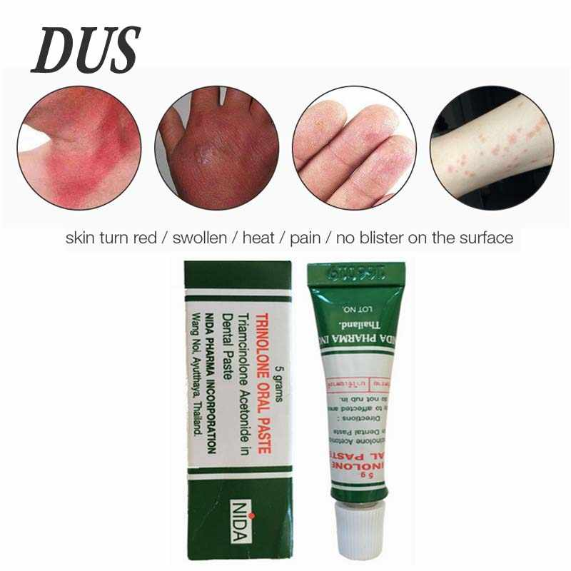 Dus Dropshipping Thai Oral Cream Oral Ulcer Oral Inflammation Toothache  Tongue Pain Ulcer Cream Scald Cream