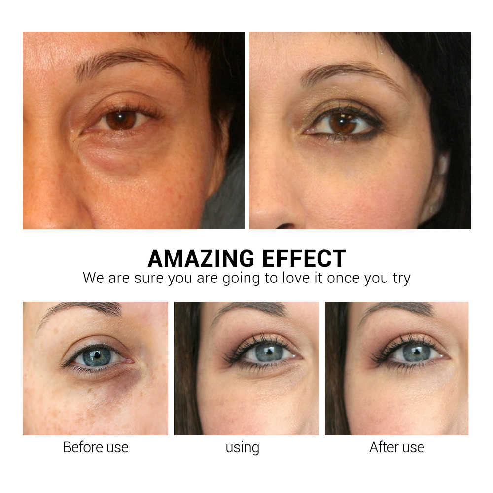 LANBENA патчи для глаз гиалуроновая кислота ретинолом патчи для глаз сыворотка убрает круги и мешки под глазами против морщин восстанавливающие увлажняющие для подтяжки кожи уход за кожей
