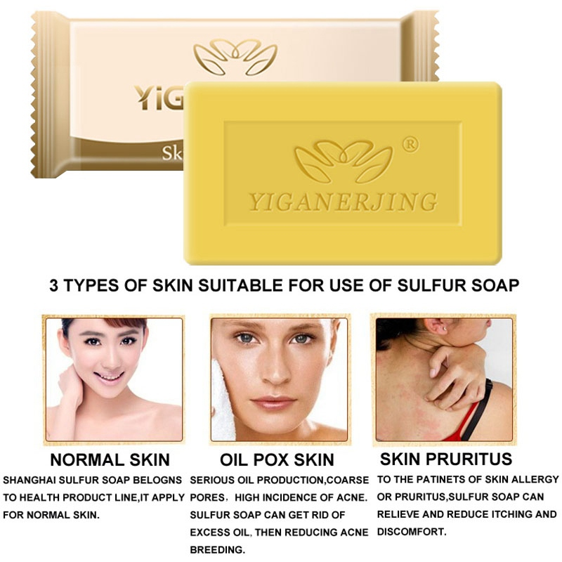 5pcs Sulfur Soap Control Oil Mild No Stimulation Pure Natural Skin Cleansing Soap