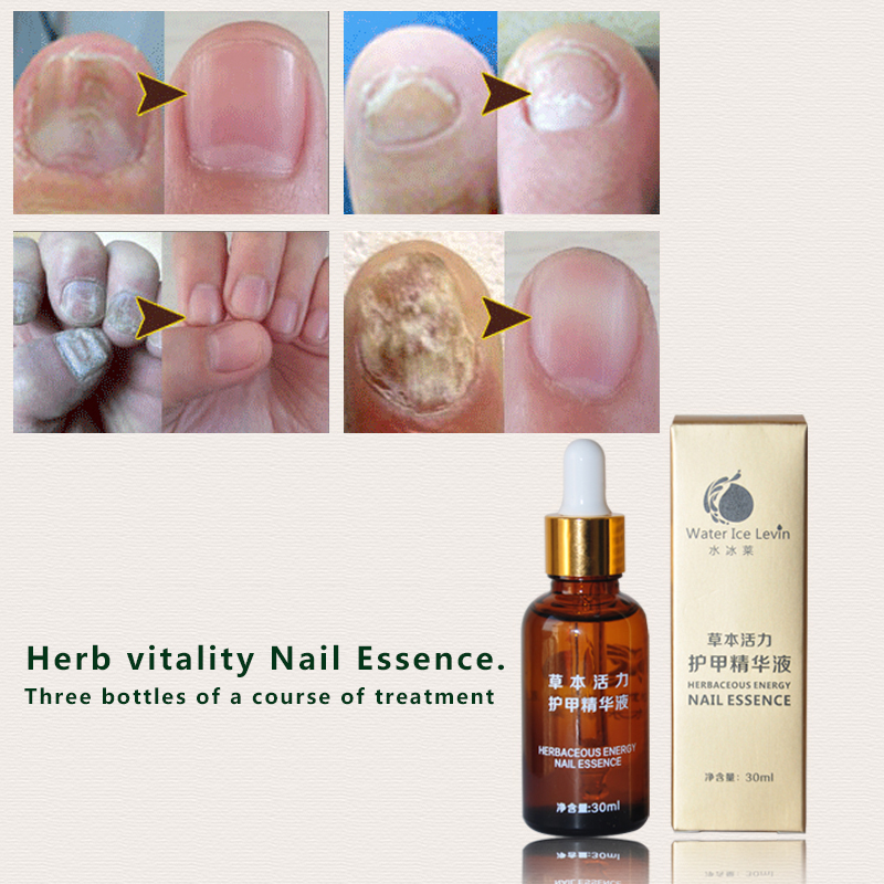 1Pcs Water Ice Levin Fungal Nail Treatment Essence Nail and Foot Whitening Toe Nail Fungus Removal Feet Care Nail Gel