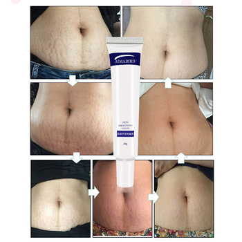 Smooth Skin Cream Fat wrinkles Pregnancy Removal To Maternity Skin Repair Body Cream 2