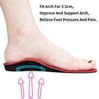 Ортопедические стельки #3