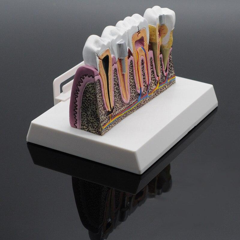 Dentiste laboratoire gomme souple dents modèle dents remplacement pour étude étudiant pratique