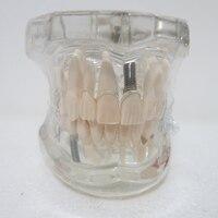 Dental Materials Oral Removable Dental Pathological Model Teaching Model Of Adult Tooth Model
