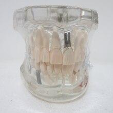 Materiais dentários Orais dentárias removíveis decoração Clínica patológica modelo Especial personalizado Figuras decorativas