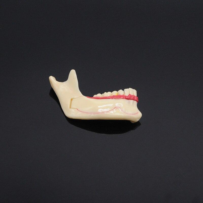 Стоматология обучение Модель Стоматологическая коммуникационная модель нижней челюсти