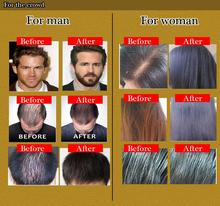 hair tonic for Hair Loss Remedies fast hair growth products for woman man, hair regrowth, yuda pilatory treatment essential oil