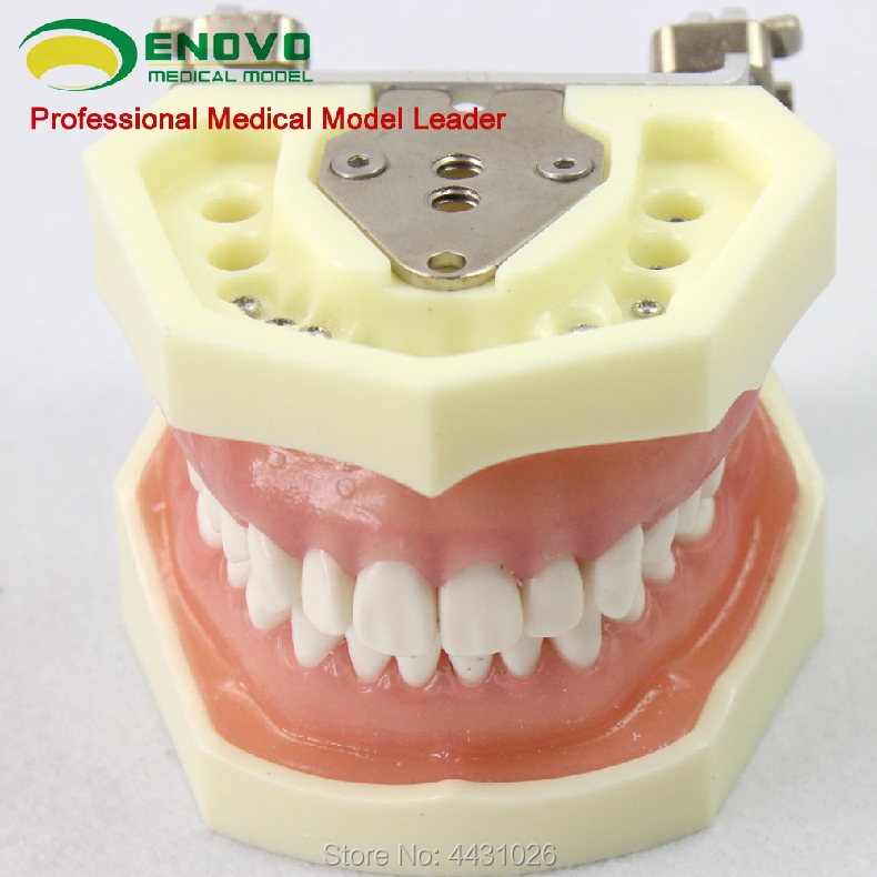 ENOVO A model of periodontal disease in oral periodontal disease resin oral periodontal disease classification model gingivitis degree chronic periodontitis model