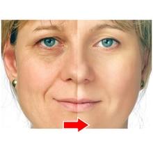 ФОТО argireline peptide solution and anti wrinkle cream anti wrinkle anti-aging remove crow's feet wrinkles skin care