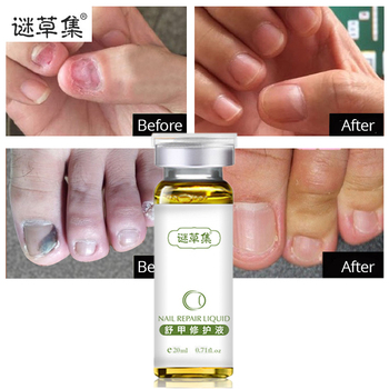 NEW  Hand And Foot Care Nail Repair Essence Serum Fungal Nail Treatment Remove Onychomycosis Toe Nail Nourishing Brightening Онихомикоз