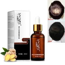 Hair Care Essence Prevention Hair Loss T