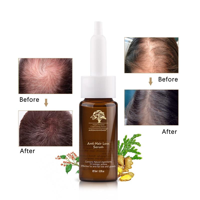 Купить с кэшбэком Anti-Hair Loss Set Organic Ginger 300ml shampoo and 15ml Oil Hair Growth Product Natural Chinese Herb Formula Repair Damage Hair