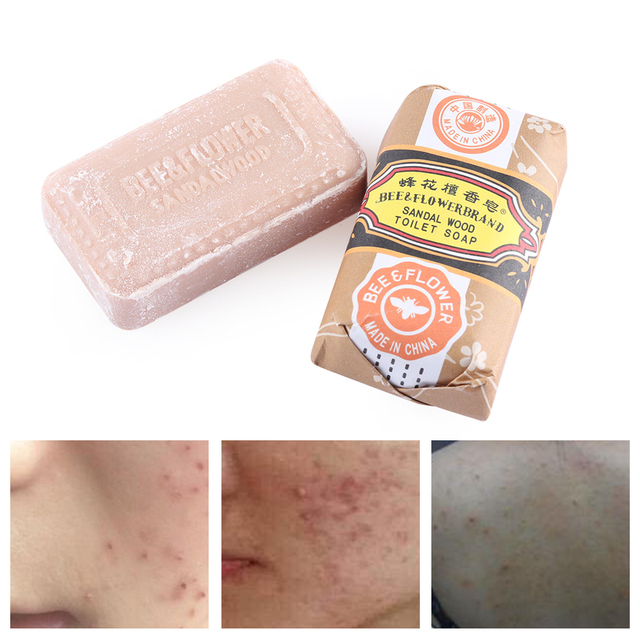 1Pc Sandalwood Whitening Soap Bar Acne Pimple Facial Nose Blackhead Remover Cleaner For Bath Shower Skin Care 5