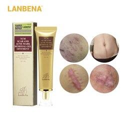 Удаление Шрама от акне крем для кожи восстанавливающий крем для лица пятна от акне лечение акне отбеливание чёрных точек крем растяжки 30 мл