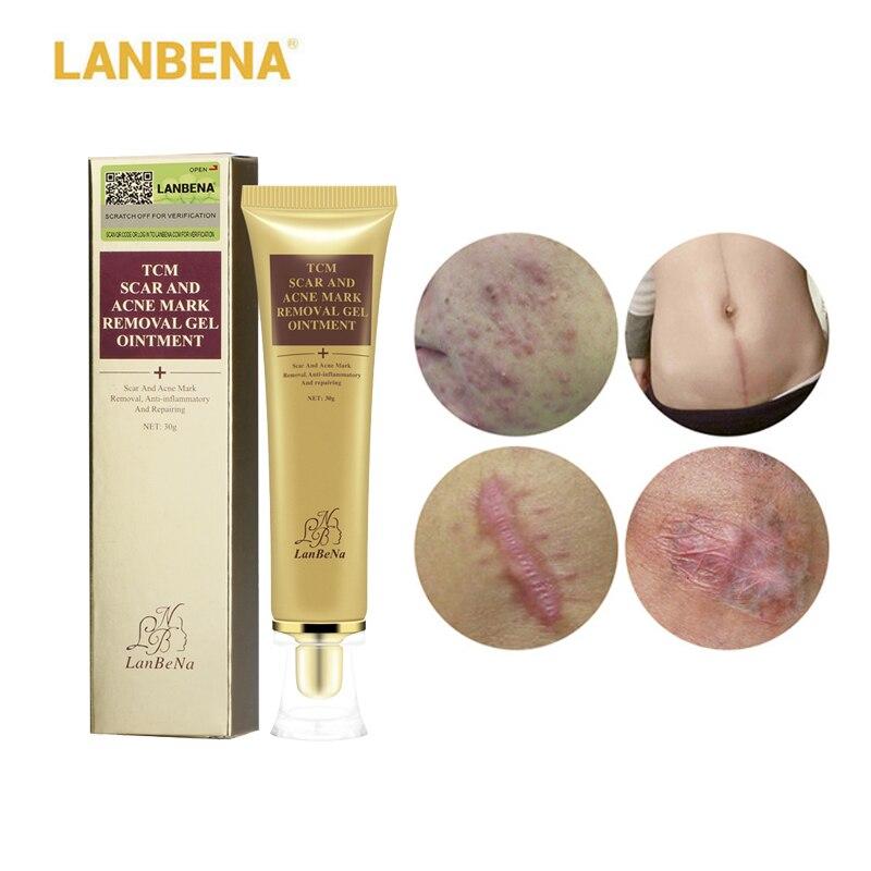 LANBENA Akne Narbe Entfernung Creme Haut Reparatur Gesicht Creme Akne Flecken Akne Behandlung Mitesser Bleaching Creme Stretch Marks 30 ml