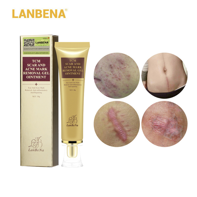 LANBENA ginseng extract against black dots cream scar removal facial blackhead acne skin care treatment, bleaching cream 30ml 10 6 oz 300g ginseng 6 years roots extract 80