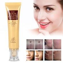 LANBENA 30g crema de eliminación de cicatriz de acné ungüento de Gel hidratante para reparar eficazmente las estrías cicatriz quirúrgica para el cuidado de la piel TSLM2