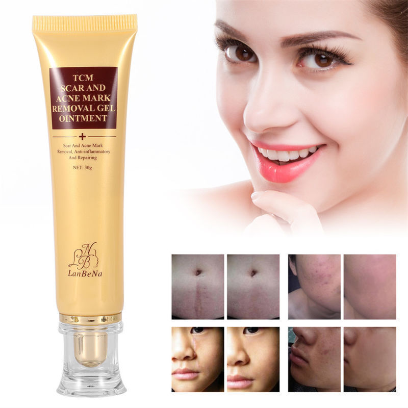 LanBeNa 30g Women TCM Ance Scar Removal Cream Moisturizer Gel Ointment Acne & Scar Repairing Cream Face Skin Care Products TSLM2