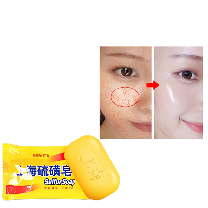 85g Shanghai Sulfur Soap Skin Acne Psoriasis Mite Anti-bacterial Anti-inflammatory Perfume Butter Bubble Bath Healthy Soaps