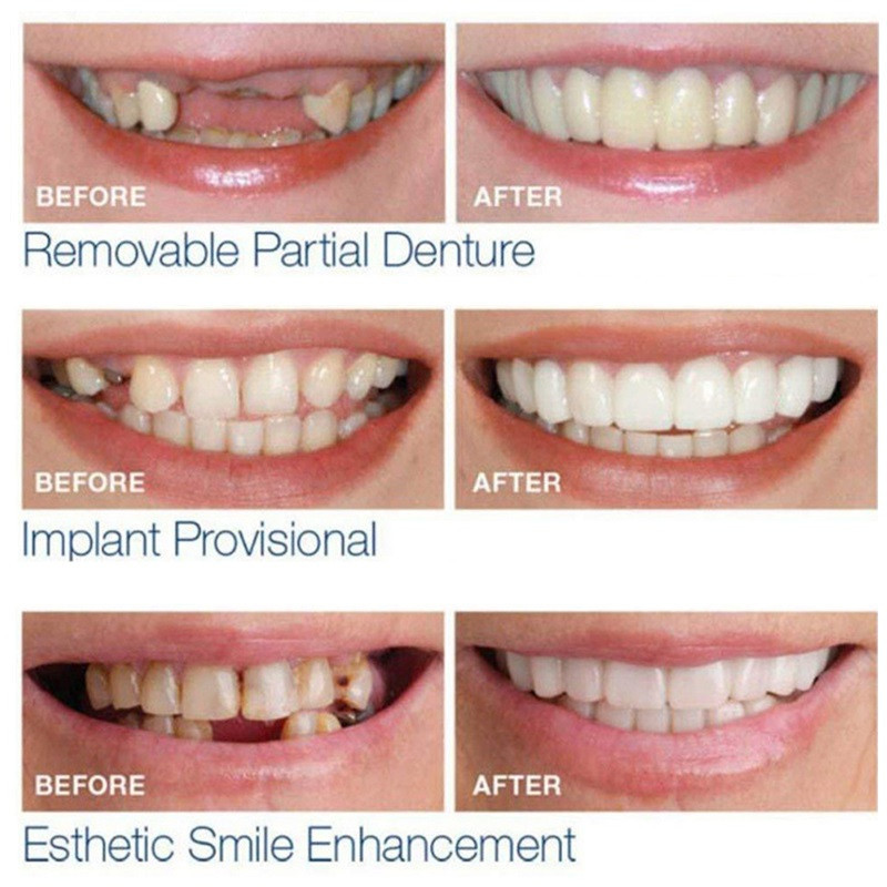 Drop-Ship-Smile-Maker-Fit-Flex-Teeth-with-Box-Fits-Snap-on-Smile-False-Teeth-Upper (1)