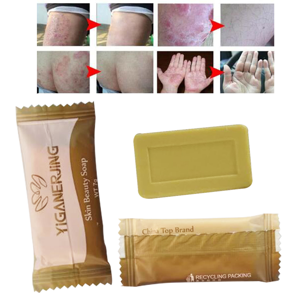 Bath & Shower Nice 1pcs Yiganerjing Sulfur Soap Psoriasis Cream Anti Bacteria Eczema Body Massage Patches Wholesale High Resilience Beauty & Health