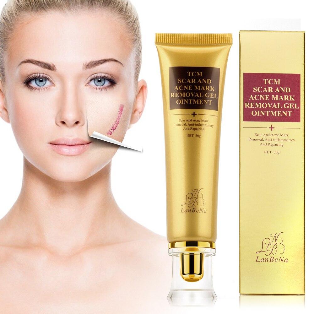 Stock Strentch marcas de acné cicatriz removedor de tratamiento para el acné reducir los poros Gel cremas blanqueadoras blanqueamiento hidratante cara crema de día