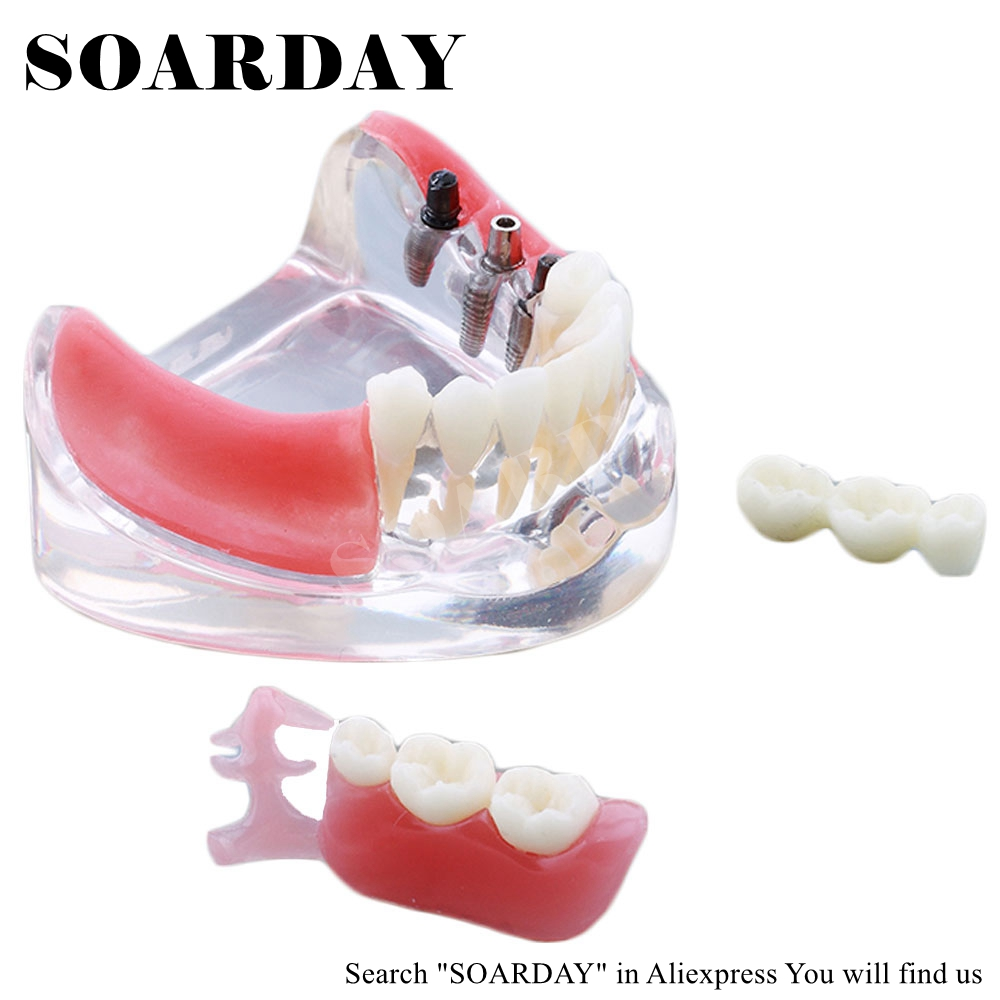 discount anatomy anatomical tooth