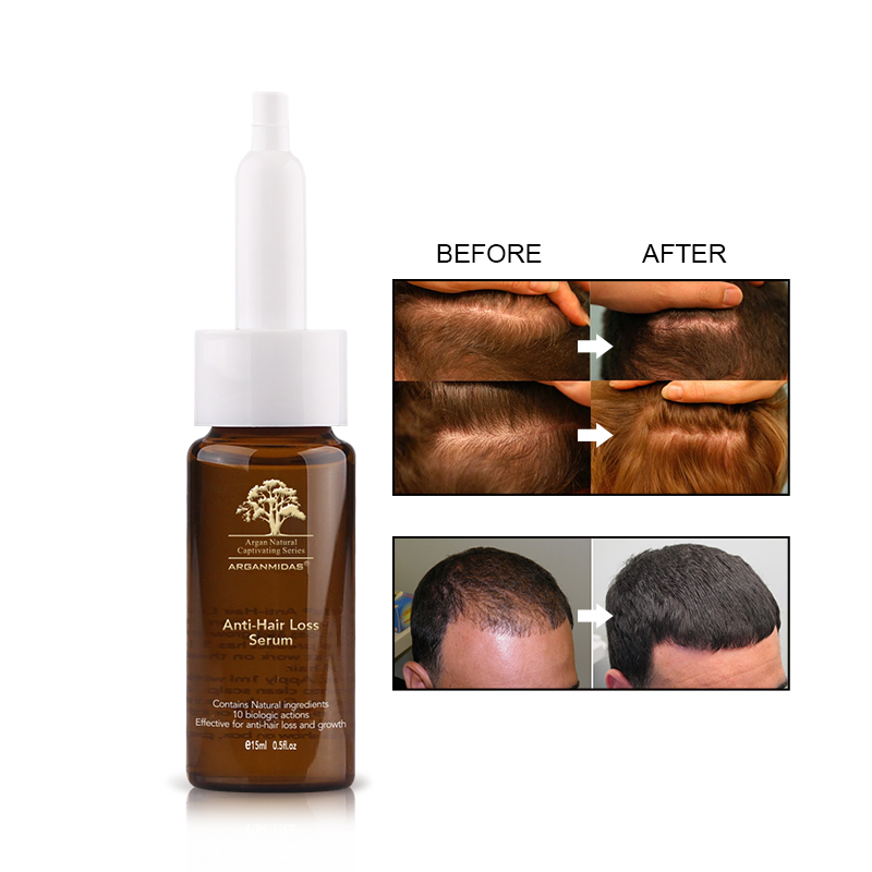 Купить с кэшбэком 15ml Anti-hair Loss Ginger Oil Hair Growth Product Natural extraction material For Man and Woman Free Shipping