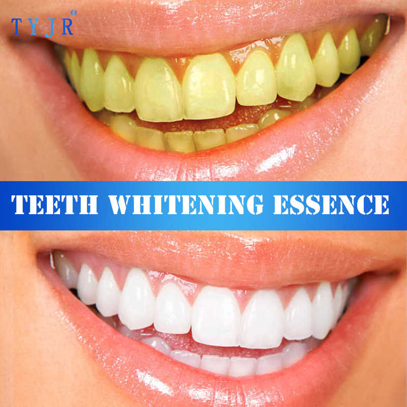 歯ホワイトニングエッセンス粉経口衛生クリーニング血清削除プラーク汚れ歯漂白歯科ツール歯磨き粉