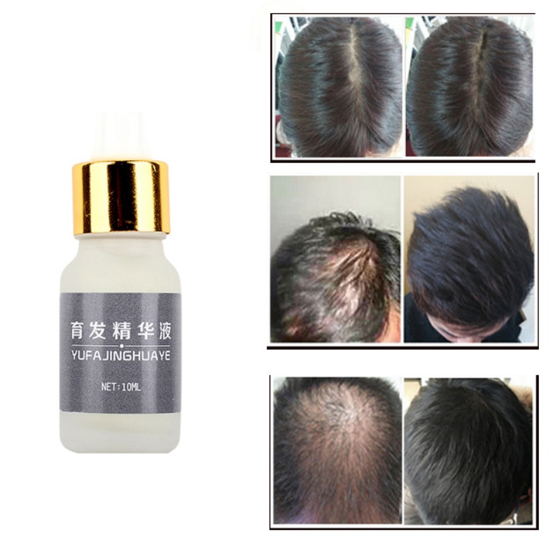 Natural Hair Care Fast Powerful Nourish Hair Growth Products Regrowth Essence Li