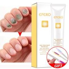 efero Nail Serum Repair Essence Fungal Nail Treatment Repair Fungus Nail Toe Nourish Cream Remove Onychomycosis Nail Gel Essence