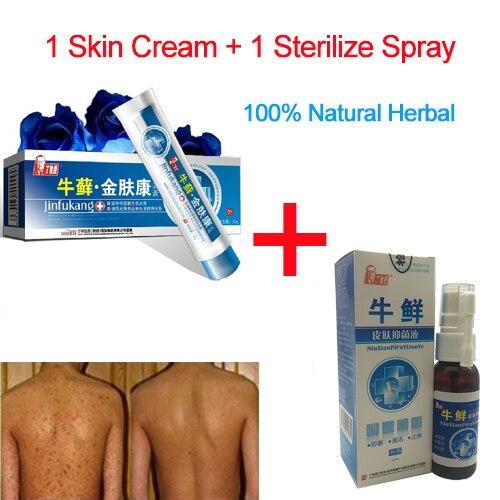 Psoríase creme + spray de Combinação 100% Original Profissional Poderosa Cura Psoríase Psoríase médica