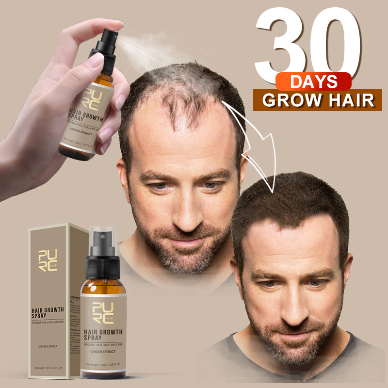 PURC New Product 30ml Hair Care Treatment Hair Growth Spray Ginger Extract Prevent Hair Loss for Men & Women Pakistan