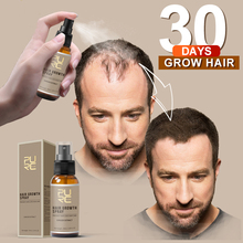 PURC New Product 30ml Hair Care Treatment Hair Growth Spray Ginger Extract Prevent Hair Loss for Men & Women