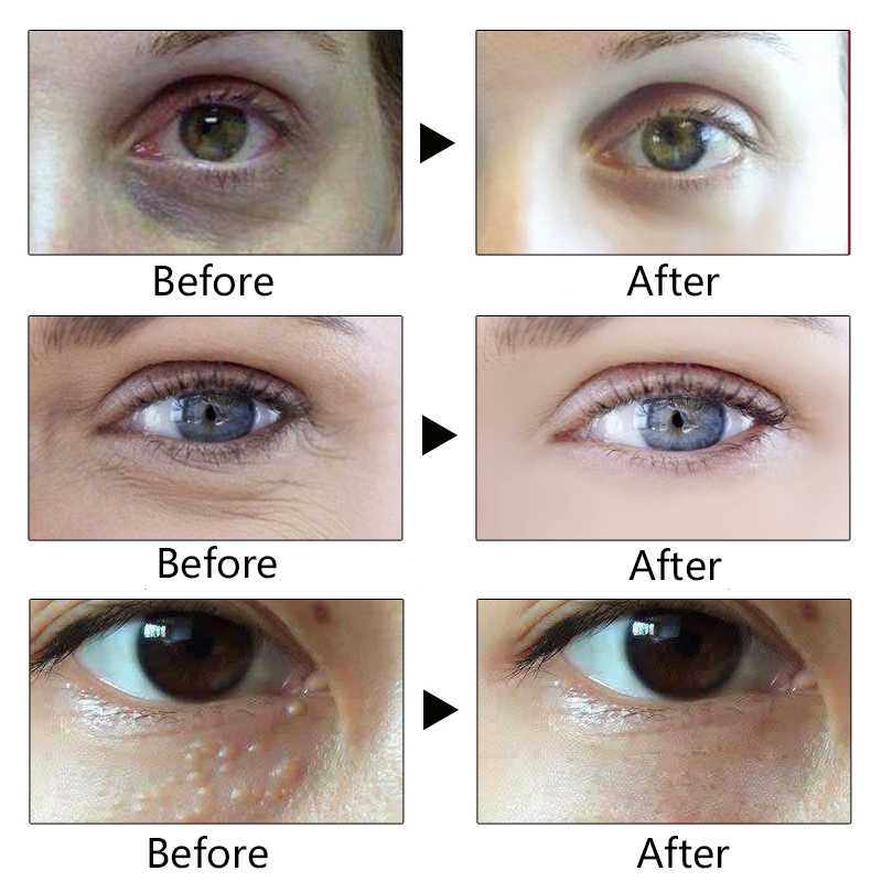 Anti Winkles Eye Cream Anti Aging Remove Dark Circles Anti-Puffiness Eyes  Cream Eye Serum Under Eye Bags Removal Cream Skin Care