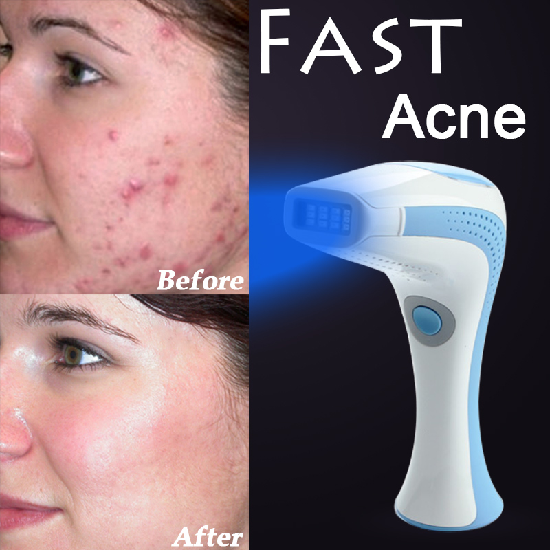 Online buy wholesale laser scar removal from china laser for Acne salon treatments