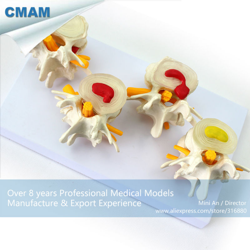 12396 CMAM-VERTEBRA12 Life-size Lumbar Vertebrae Models in 3 Stages of Degeneration 12338 cmam pelvis01 anatomical human pelvis model with lumbar vertebrae femur medical science educational teaching models
