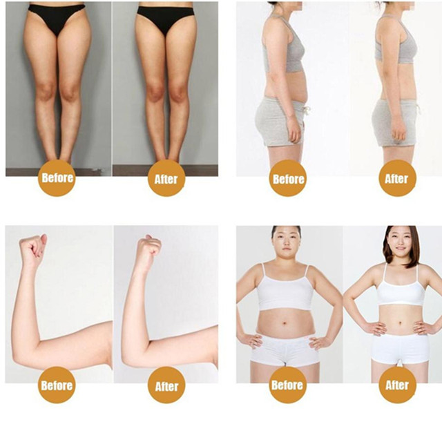 KONGDY Brand Lower Body Slim Patch 30 Pieces /Box Leg Slim Pad Body Weight Loss Plaster Fat Burning Patches Natural Ingredients 1