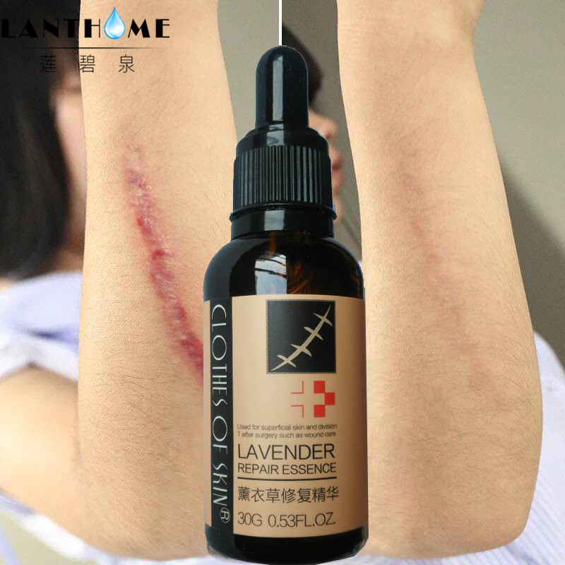 Крем-сыворотка для Удаления растяжек с экстрактом, восстанавливающий кожу для беременных, восстанавливающий хирургический шрам/ожоги/Уход за акне