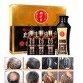 Medicina china Conjunto de Tratamiento de Pérdida de Cabello Nuevo Crecimiento Del Pelo Del Resplandor Solar Verdadero Resultado 30mlx3 + Anti Hair Loss Shampoo Líquido Esencia 200 ml