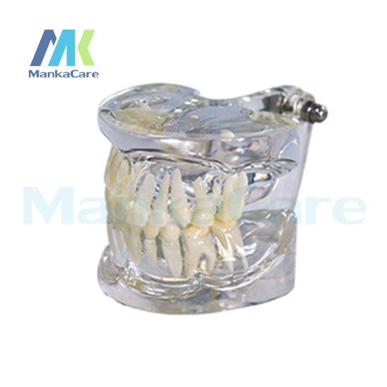 Manka Care - Clear primary model Oral Model Teeth Tooth Model