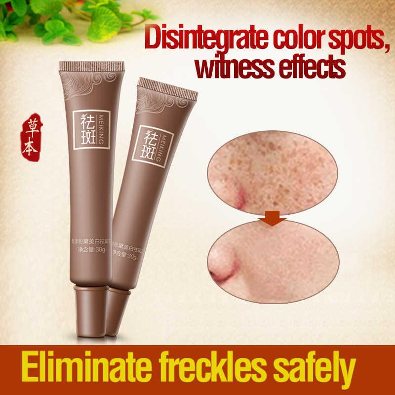 Freckle Cream ครีมลดจุดด่างดำผิว Whitening Lightening Serum ช่วยลดจุดด่างดำกระฝ้าครีม