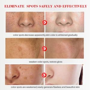 Image 5 - EFERO פנים קרם הלבנת נמשים להסיר אנטי גיל כתמים שחורים עור טיפול כהה כתמי Melasma ברק חלק פנים סרום