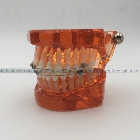 com metal suportes ceramicos ortopedia dentista