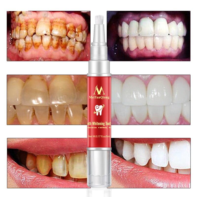1pc White Teeth Whitening Pen Teeth Gel Bleach Cleaning Oral Hygiene Spots Dental Stain Remover Brighten Teeth Pen Dental Care