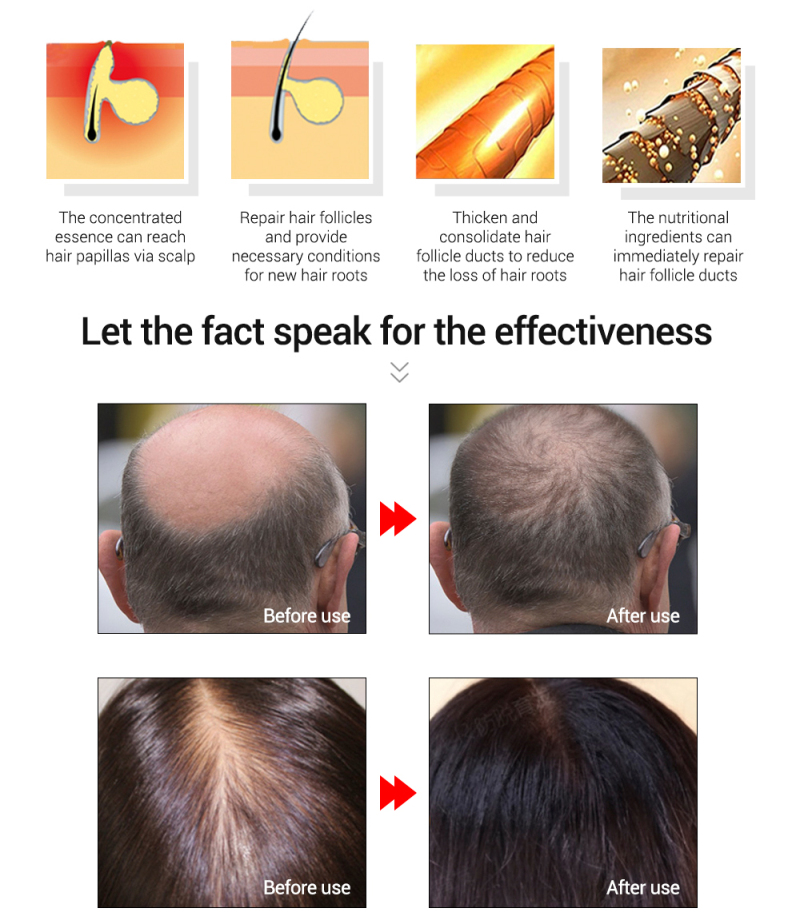 PURC 20ml Fast Hair Growth Essence Oil Hair Loss Treatment Help Nourish Effective Extract Roots Hair Care Hot Sale TSLM1